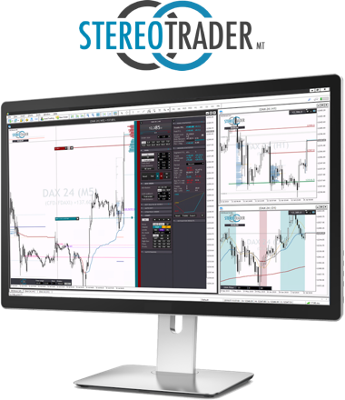 stereo-trader-image